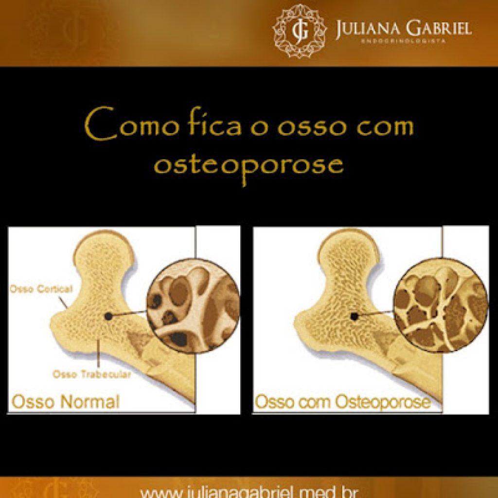 oossocomosteoporose